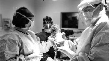 césarienne programmée naissance bébé médecin hôpital
