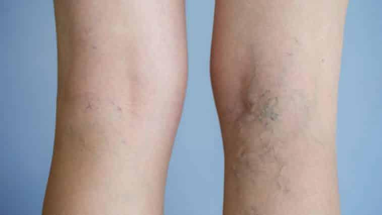 jambes femmes varices veines